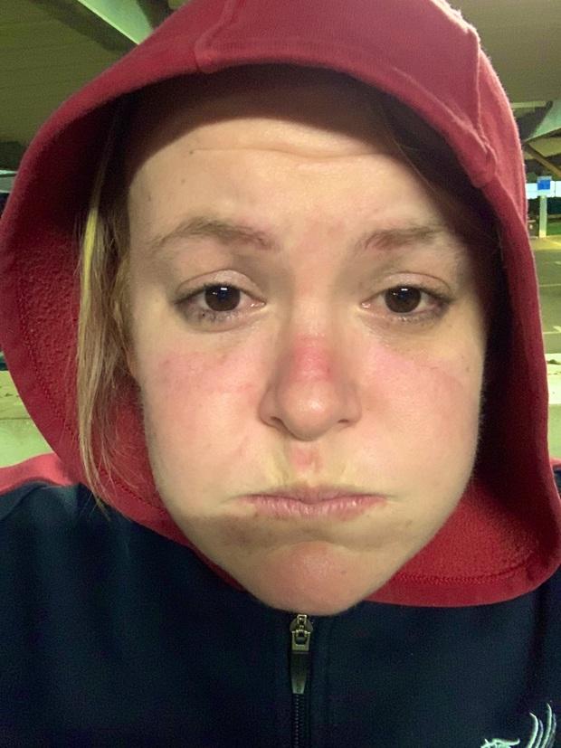 Xót thương những khuôn mặt bầm tím và đầy vết hằn của các y bác sĩ đang căng mình ra chống dịch Covid-19 trên toàn thế giới - Ảnh 3.