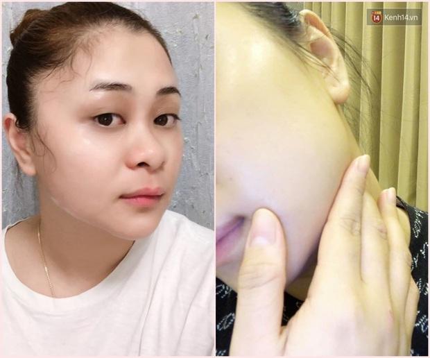Tuyệt hơn cả serum, chai lotion bình dân Nhật Bản đã giúp lỗ chân lông của cô bạn này nhỏ mịn đi thấy rõ - Ảnh 1.