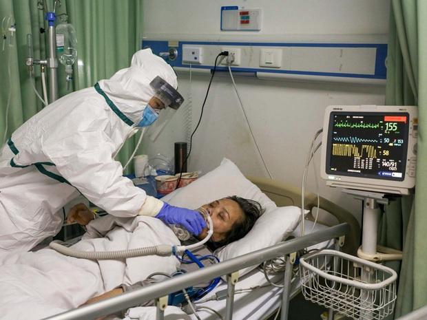 Covid-19 nguy hiểm cả với người trẻ: Chia sẻ của một bác sĩ tuyến đầu cho thấy nó tàn phá phổi người bệnh như thế nào - Ảnh 3.