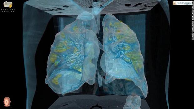 Đoạn video cho thấy virus corona có thể làm gì với phổi của bệnh nhân: Tất cả mọi người, xin hãy chống dịch thật nghiêm túc - Ảnh 3.