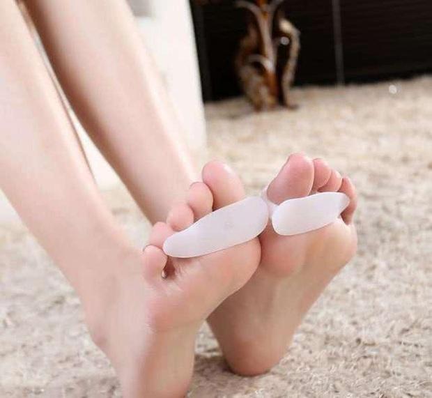Phụ nữ có nhiều nguy cơ bị vẹo ngón chân cái hơn nam giới và đây là phương pháp cải thiện - Ảnh 2.