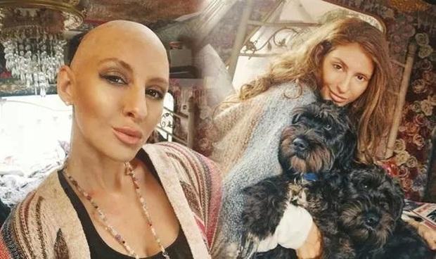 Đừng bỏ qua 7 triệu chứng cho thấy bạn có thể bị ung thư vú, không phải ai cũng may mắn thoát chết như cô gái này - Ảnh 1.