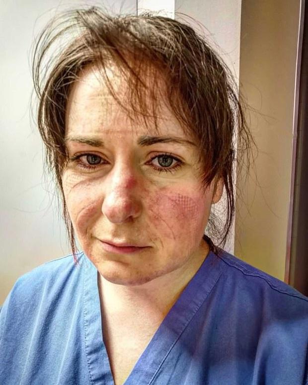 Nữ y tá xinh đẹp chia sẻ hình ảnh gương mặt biến dạng, đã đi qua địa ngục sau 65 tiếng làm việc và lời khẩn cầu dành cho tất cả mọi người - Ảnh 2.