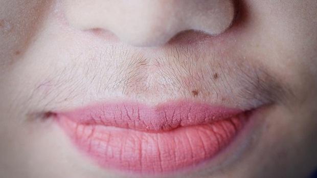 3 dấu hiệu lạ trên miệng cho thấy vùng kín của chị em đã nhiễm bệnh, cần phải được thăm khám ngay - Ảnh 3.