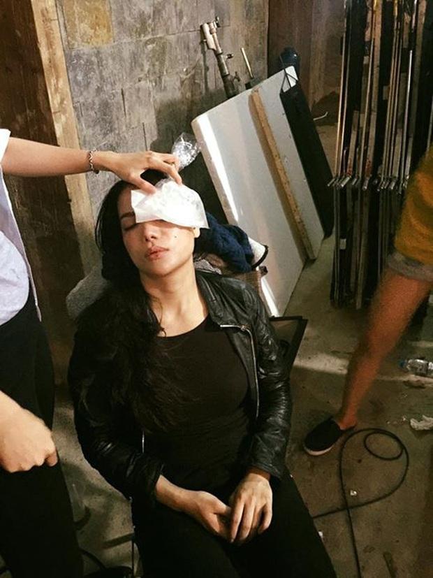 Sao Việt đau đớn do tai nạn hi hữu ở hậu trường: Trúc Anh bị xe lôi xềnh xệch, Lý Hải - Trương Ngọc Ánh đổ máu vì vai diễn - Ảnh 9.