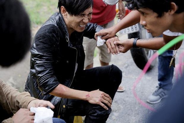 Sao Việt đau đớn do tai nạn hi hữu ở hậu trường: Trúc Anh bị xe lôi xềnh xệch, Lý Hải - Trương Ngọc Ánh đổ máu vì vai diễn - Ảnh 5.
