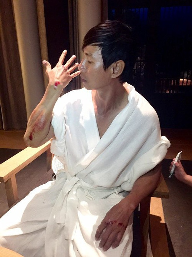 Sao Việt đau đớn do tai nạn hi hữu ở hậu trường: Trúc Anh bị xe lôi xềnh xệch, Lý Hải - Trương Ngọc Ánh đổ máu vì vai diễn - Ảnh 6.