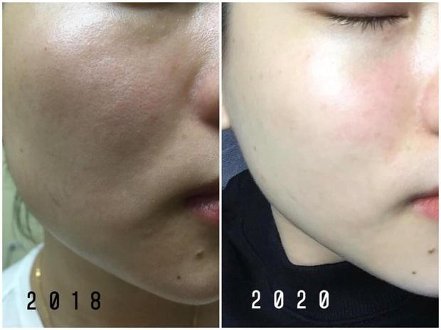 Năm 22 tuổi mới bắt đầu tập tành dưỡng da, tôi đã mất tới 4 năm để tìm được các sản phẩm ruột cho làn da siêu khô - Ảnh 1.