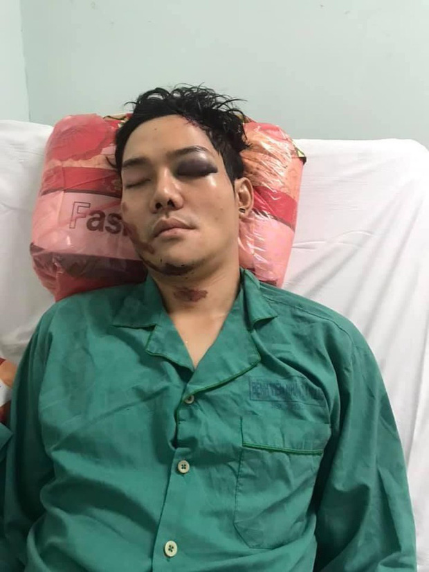 Muôn nỗi khó khăn của sao Việt kiếm sống mùa dịch: Phát khóc vì bị bom hàng, gặp tai nạn nghiêm trọng vì làm shipper - Ảnh 5.