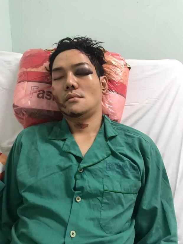 Sau tai nạn nghiêm trọng, con trai nuôi nghệ sĩ Hoài Linh phẫu thuật nối xương hàm bị gãy đôi vào sáng nay - Ảnh 2.