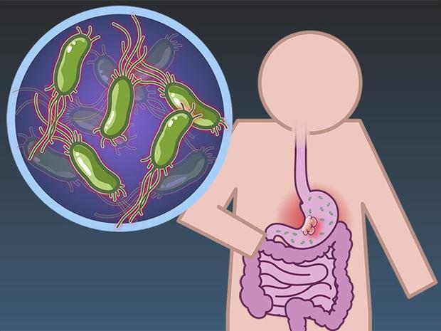 6 nhóm người có nguy cơ cao mắc bệnh ung thư dạ dày, cần chủ động đi nội soi ngay từ sớm - Ảnh 4.