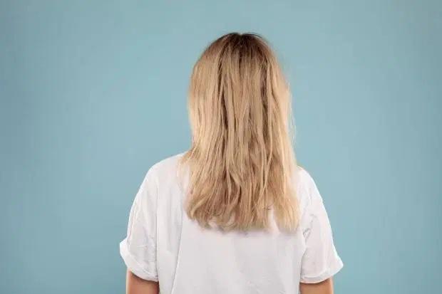 3 tuần không dùng dầu gội đầu, cô gái thấy tóc mềm mượt, óng ả hơn hẳn, lại còn giảm gãy rụng thấy rõ - Ảnh 7.