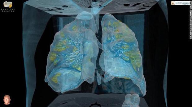 Bệnh nhân nhiễm Covid-19 phải nghiêm trọng thế nào mới phải sử dụng đến máy trợ thở? - Ảnh 4.