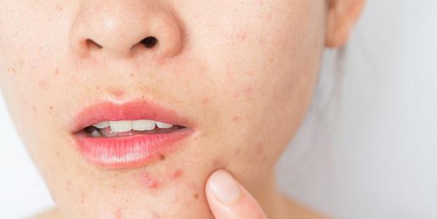 2 tuần ở nhà không có sản phẩm trị mụn, khi đó nước muối sinh lý và 3 bước làm sạch có thể chữa lành mọi hư tổn trên da - Ảnh 1.