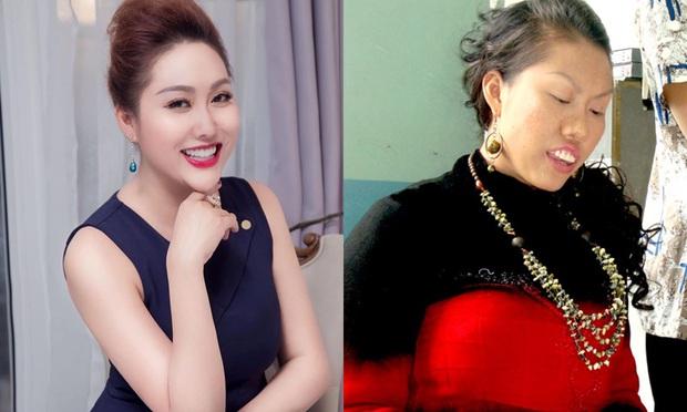 7 pha phá hoại dung nhan vì vai diễn đáng nể của mỹ nhân Việt: Đỉnh cao nhất là màn lột da toàn thân của Thúy Ngân - Ảnh 3.