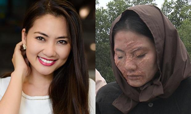 7 pha phá hoại dung nhan vì vai diễn đáng nể của mỹ nhân Việt: Đỉnh cao nhất là màn lột da toàn thân của Thúy Ngân - Ảnh 1.