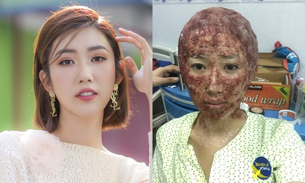 7 pha phá hoại dung nhan vì vai diễn đáng nể của mỹ nhân Việt: Đỉnh cao nhất là màn lột da toàn thân của Thúy Ngân - Ảnh 2.