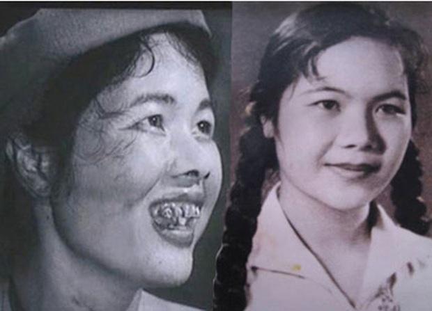 7 pha phá hoại dung nhan vì vai diễn đáng nể của mỹ nhân Việt: Đỉnh cao nhất là màn lột da toàn thân của Thúy Ngân - Ảnh 9.
