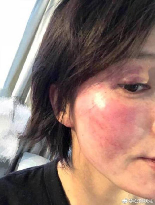 Dàn cast Thượng Ẩn sau 4 năm: Cố Hải đánh đập dã man vợ cũ, tránh Bạch Lạc Nhân như tránh tà, sao phụ chới với giữa showbiz - Ảnh 6.
