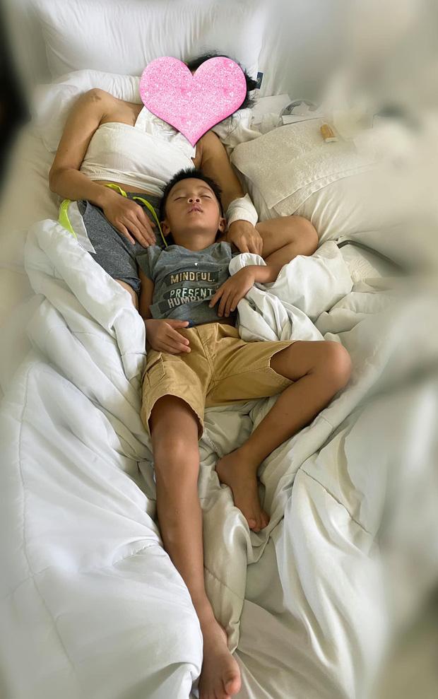 Ca sĩ Hồng Ngọc để lộ vết bỏng lớn ở chân, tiết lộ phản ứng của con gái nhỏ khiến cả dàn nghệ sĩ không nén nổi xúc động  - Ảnh 4.