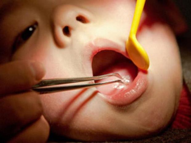 Ăn cháo lươn, bé gái 7 tháng tuổi suýt chết - Ảnh 2.