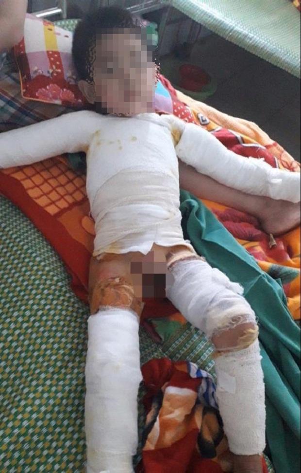 Nghịch bật lửa bén vào áo, bé trai 5 tuổi bị bỏng toàn thân - Ảnh 1.