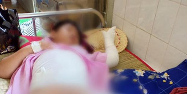 Một nhóm người ném bom xăng rồi ngăn không cho người dân chữa cháy, hai đứa trẻ bị bỏng nặng - Ảnh 4.