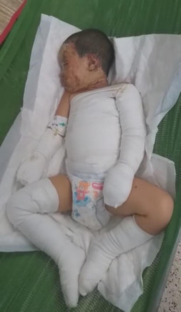 Một nhóm người ném bom xăng rồi ngăn không cho người dân chữa cháy, hai đứa trẻ bị bỏng nặng - Ảnh 5.