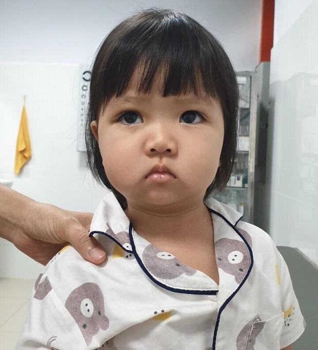 Đang ăn kem thì vấp ngã, bé gái 2 tuổi bị que kem chọc xuyên hốc mắt - Ảnh 2.