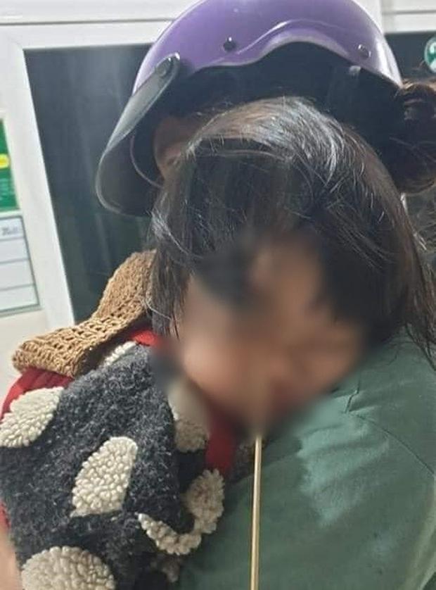 Đang ăn kem thì vấp ngã, bé gái 2 tuổi bị que kem chọc xuyên hốc mắt - Ảnh 1.