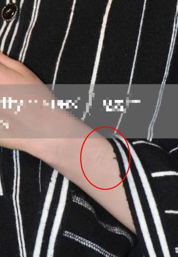 Xôn xao loạt hình ảnh Dương Mịch lộ sẹo dấy lên nghi vấn tự cắt cổ tay, ngược đãi bản thân - Ảnh 3.