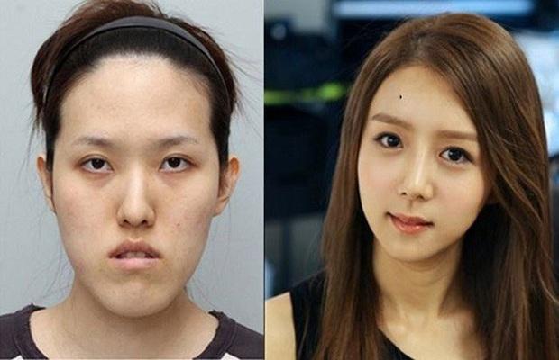 Văn hóa vâng lời và áp lực về cái đẹp của người Hàn Quốc: Bị phán xét từ mí mắt đến màu da, cuối cùng phải bước vào con đường dao kéo - Ảnh 1.
