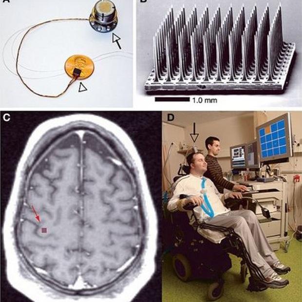 Thí nghiệm đầu tiên trong lịch sử chứng minh bộ não tự phát lại ký ức trong ngày khi bạn ngủ - Ảnh 2.