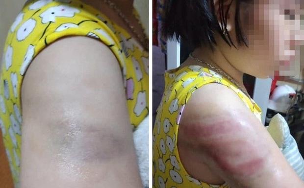 Nữ giáo viên đánh học sinh lớp 4 bầm tím cánh tay tường trình do mất bình tĩnh - Ảnh 1.