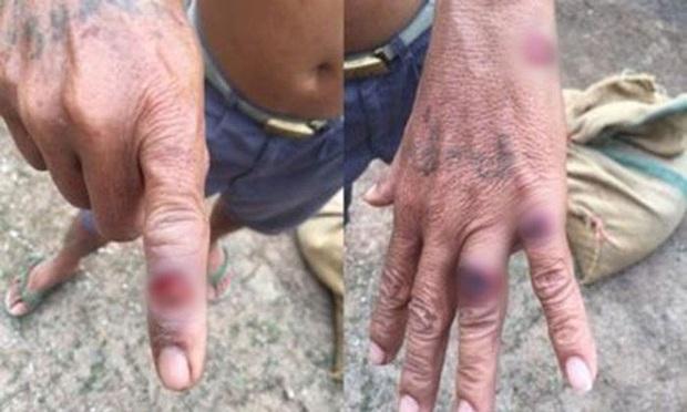 Gây hoại tử, chảy mủ trên da vẫn chưa là gì, bệnh Than còn có 2 thể khác nguy hiểm hơn, sau 1 tuần nhiễm bệnh có thể tử vong - Ảnh 1.
