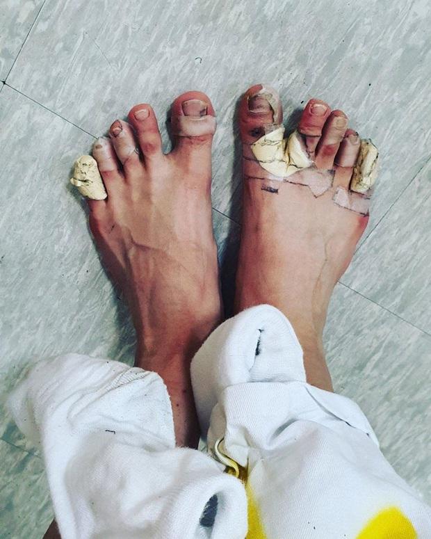 Vừa bị loại, nam Idol khiến fan xót xa khi đăng ảnh đôi chân bầm dập vì tập luyện cho show thực tế - Ảnh 2.