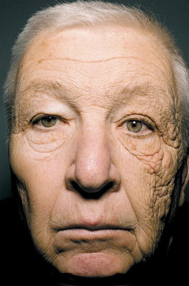 Ai lười bôi kem chống nắng sẽ tởn đến già khi xem những hình ảnh cho thấy tia UV có thể hủy hoại làn da kinh hoàng thế nào - Ảnh 1.