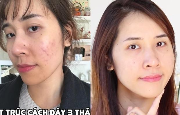 3 sản phẩm skincare thực sự cứu các beauty blogger khỏi cảnh thâm mụn, kiểu gì bạn cũng nhặt được ít nhất một món thật xịn - Ảnh 7.
