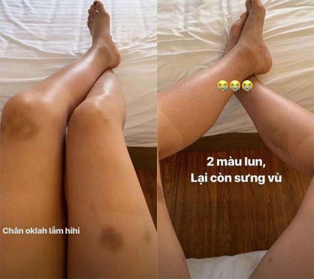 Ai lười bôi kem chống nắng sẽ tởn đến già khi xem những hình ảnh cho thấy tia UV có thể hủy hoại làn da kinh hoàng thế nào - Ảnh 2.