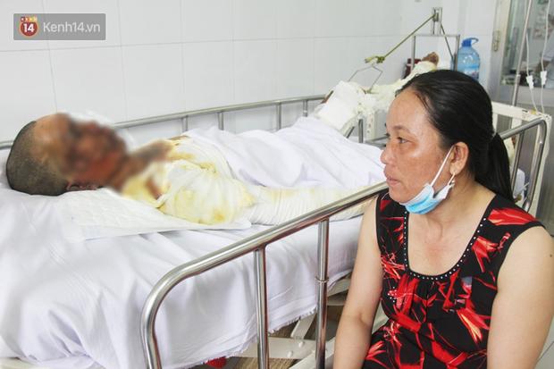 Bị điện giật phỏng nặng trong lúc đi làm mướn, người đàn ông bật khóc trên giường bệnh vì sợ 2 đứa con không dám nhận cha - Ảnh 6.