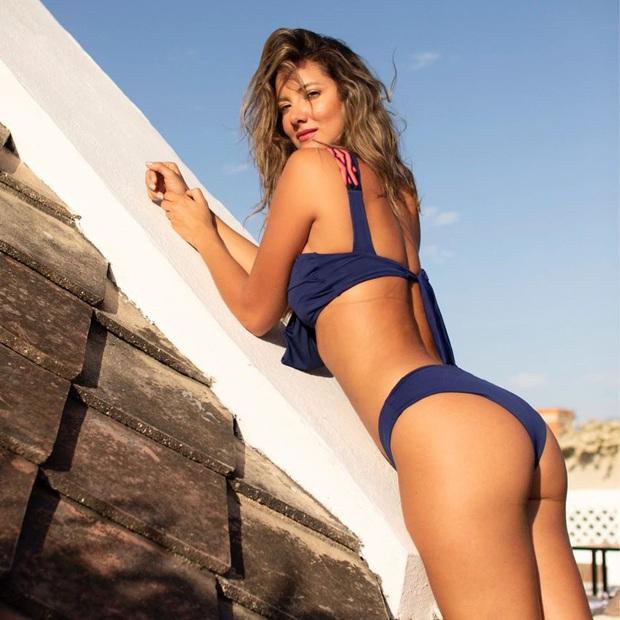 Xót xa nụ cười lạc quan cùng hình ảnh sắc vóc đỉnh cao của Hoa hậu Colombia bị cưa chân trái vì biến chứng phẫu thuật - Ảnh 14.