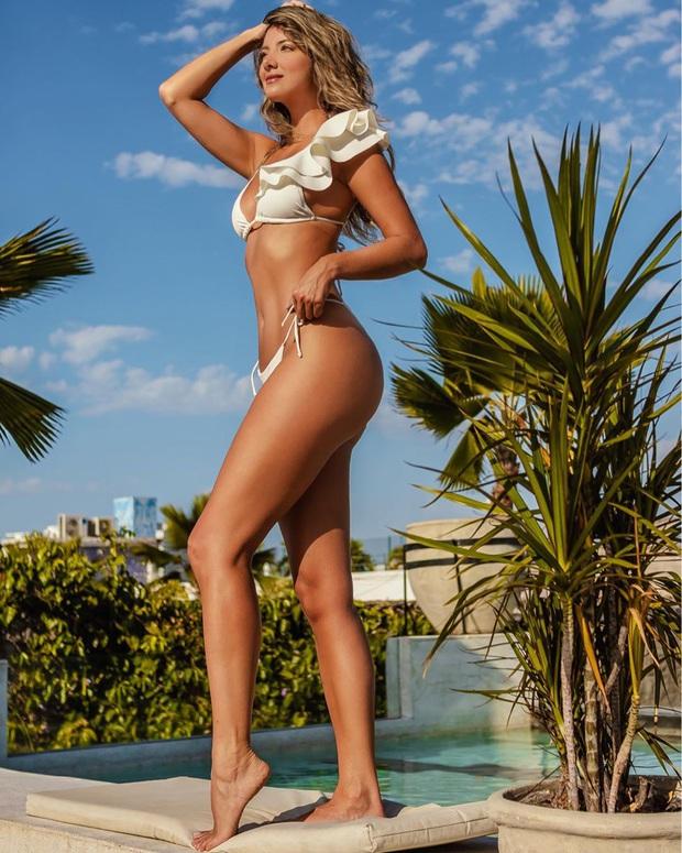 Xót xa nụ cười lạc quan cùng hình ảnh sắc vóc đỉnh cao của Hoa hậu Colombia bị cưa chân trái vì biến chứng phẫu thuật - Ảnh 11.