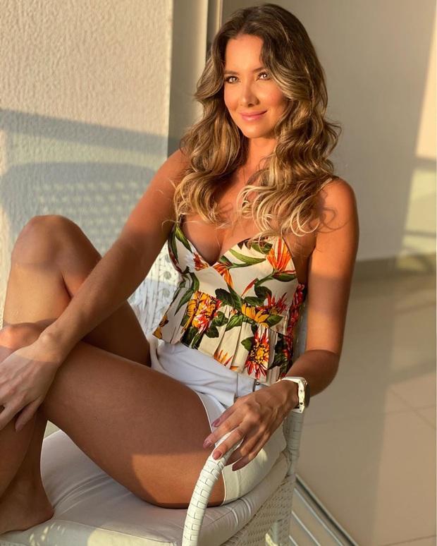Xót xa nụ cười lạc quan cùng hình ảnh sắc vóc đỉnh cao của Hoa hậu Colombia bị cưa chân trái vì biến chứng phẫu thuật - Ảnh 9.