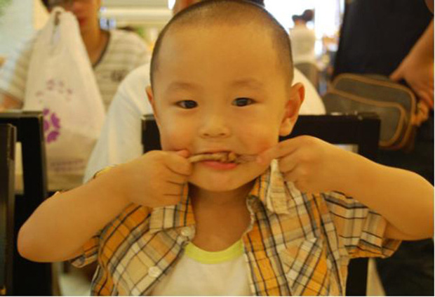 Bé trai 5 tuổi bị hoại tử ruột sau bữa ăn, bác sĩ cảnh báo 3 món ăn độc hại không nên cho trẻ ăn quá nhiều và thường xuyên - Ảnh 1.