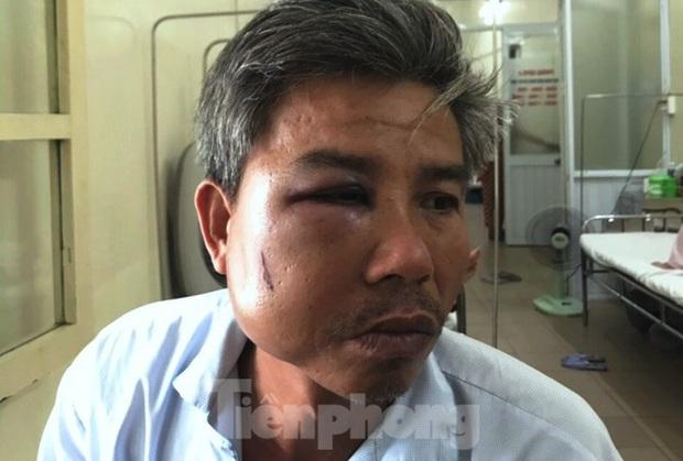 Nhân viên cây xanh bị đánh bầm dập, vỡ hàm khi chụp ảnh hiện trường - Ảnh 1.