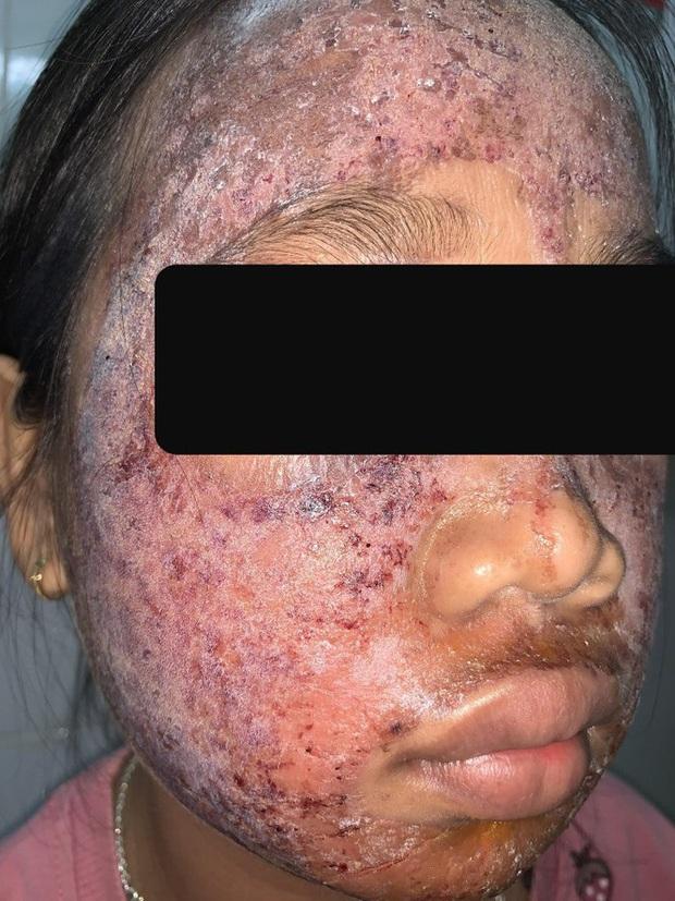 Thiếu nữ 17 tuổi hỏng mặt do dùng mỹ phẩm lột trắng da - Ảnh 2.