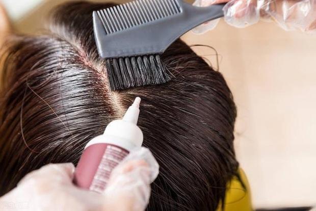 Nhuộm tóc liên tục trong 16 năm, chàng trai 36 tuổi hối hận khi phát hiện ung thư da! Nhuộm tóc có thực sự gây ung thư? - Ảnh 2.