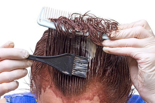 Nhuộm tóc liên tục trong 16 năm, chàng trai 36 tuổi hối hận khi phát hiện ung thư da! Nhuộm tóc có thực sự gây ung thư? - Ảnh 3.