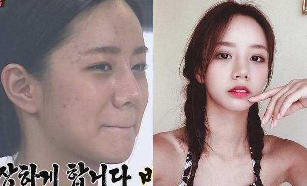 Bỏ đi lớp makeup đậm, không ít sao Hàn từng gây ngã ngửa với làn da đen nhẻm, sần sùi lấm tấm mụn - Ảnh 7.