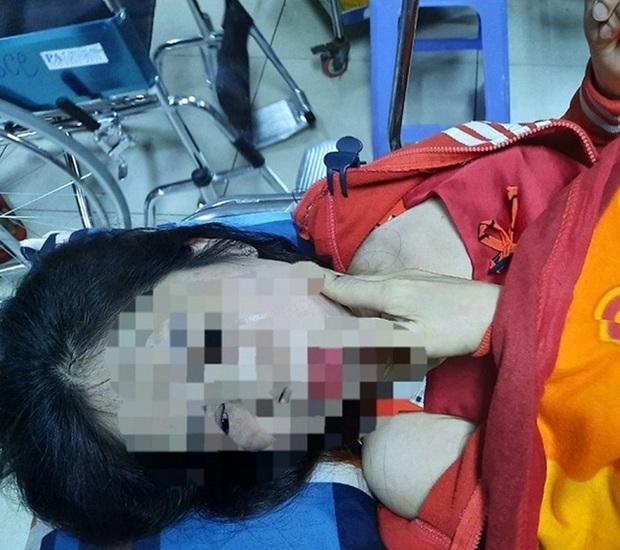Điều tra người phụ nữ nghi bị chồng hờ bạo hành dã man - Ảnh 1.
